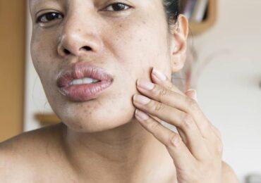 懷孕期間皮膚乾燥:原因和補救措施